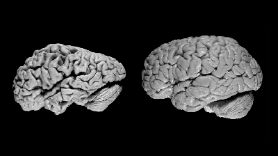 https://curare.berliat.fr/read/9047/Artificial-Intelligence-Can-Detect-Alzheimer-s-Disease-in-Brain-Scans-Six-Years-Before-a-Diagnosis-UC-San-Francisco